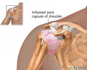 inflamed joint capsule of the shoulder. frozen shoulder, adhesive capsulitis on chiropractor.com