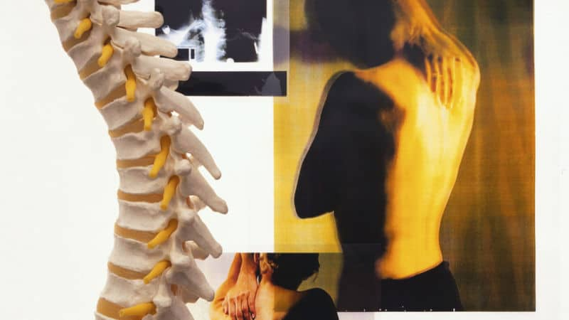 Chiropractic Treatment for Spinal Disorders