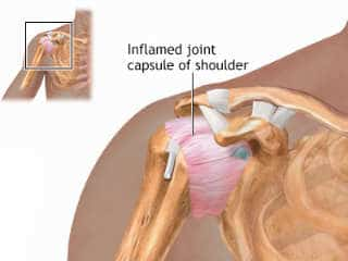 Chiropractic for Frozen Shoulder Adhesive Capsulitis