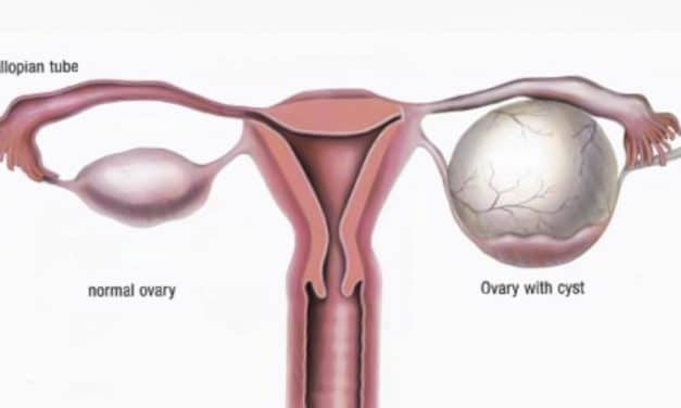Ovarian Cysts, Tumors
